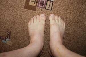Как снять опух ноги в домашних условиях