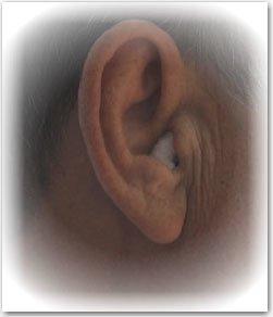 Из уха течет прозрачная жидкость
