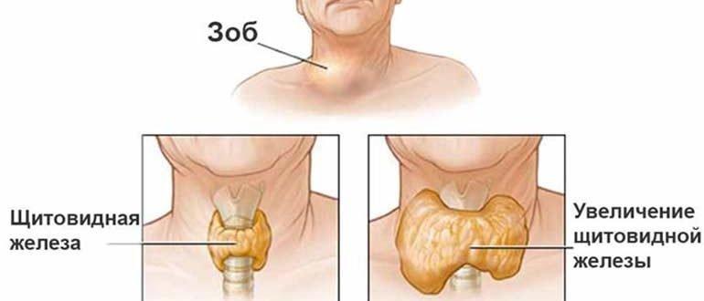 Щитовидная железа народные методы лечения